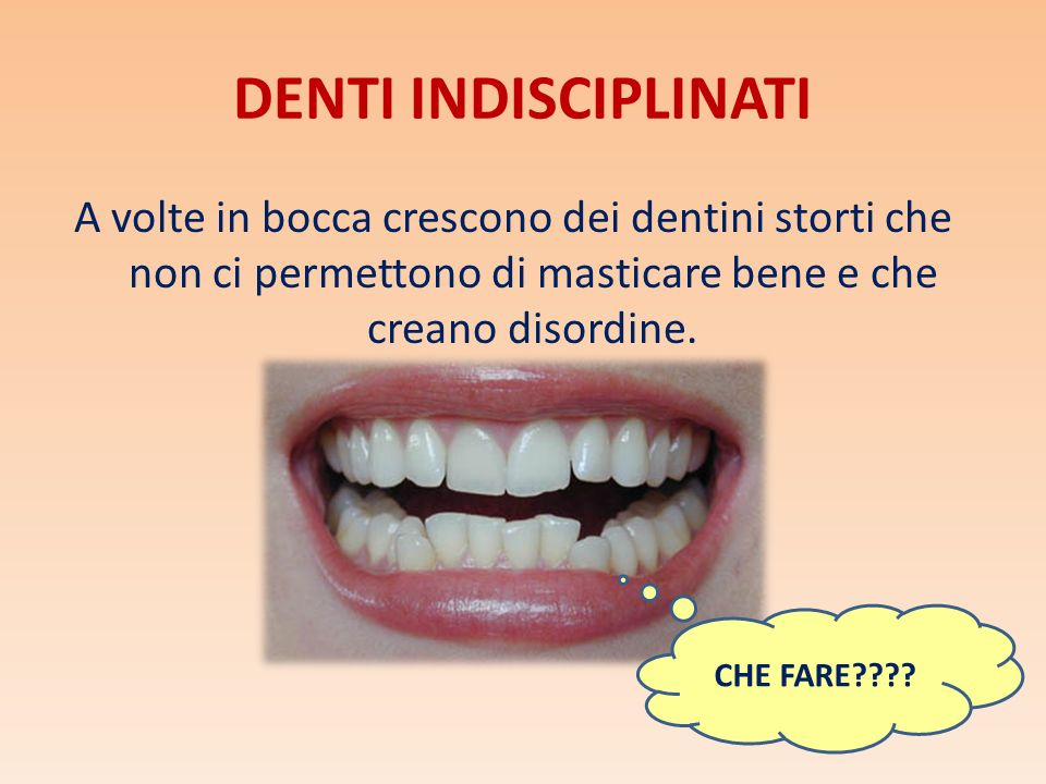 DENTI INDISCIPLINATI A volte in bocca crescono dei dentini storti che non ci permettono di masticare bene e che creano disordine.