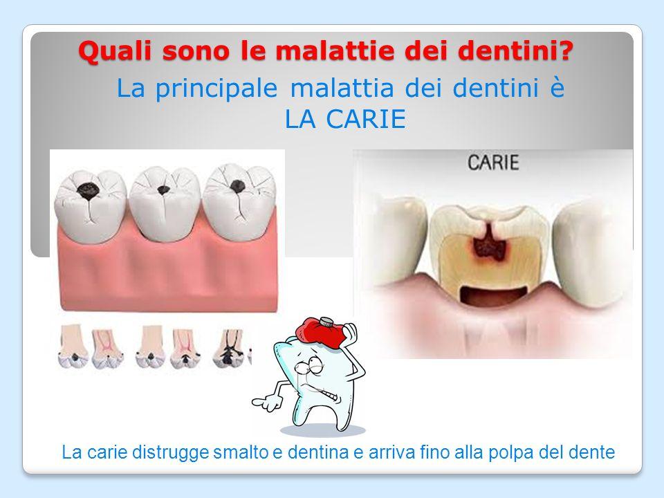 Quali sono le malattie dei dentini