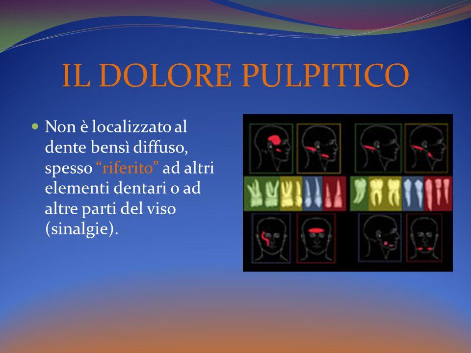 IL DOLORE PULPITICO Non è localizzato al dente bensì diffuso, spesso riferito ad altri elementi dentari o ad altre parti del viso (sinalgie).