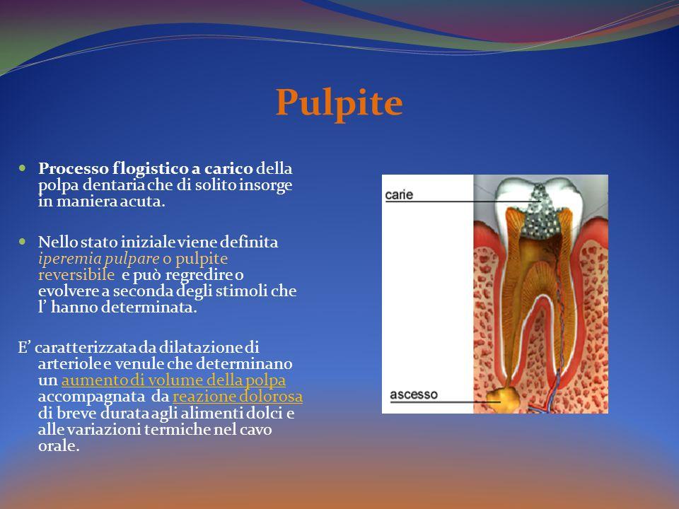 Pulpite Processo flogistico a carico della polpa dentaria che di solito insorge in maniera acuta.