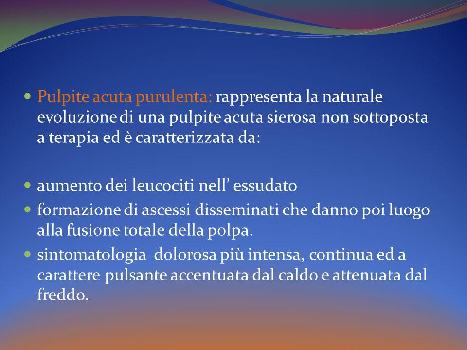 Pulpite acuta purulenta: rappresenta la naturale evoluzione di una pulpite acuta sierosa non sottoposta a terapia ed è caratterizzata da:
