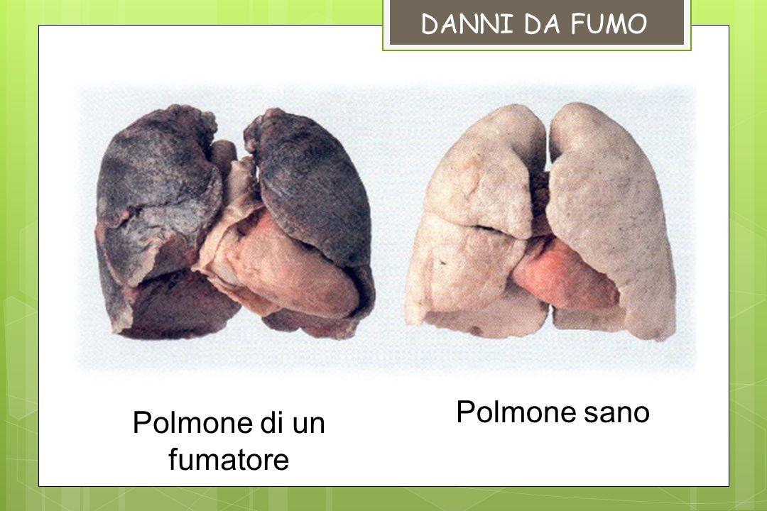 DANNI DA FUMO Polmone sano Polmone di un fumatore