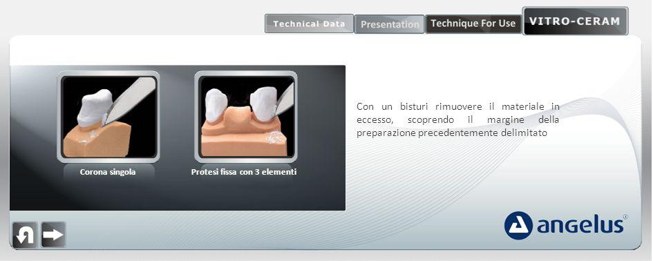 Protesi fissa con 3 elementi
