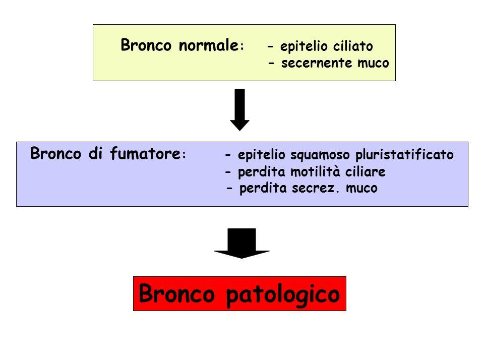 Bronco patologico Bronco normale: - epitelio ciliato - secernente muco