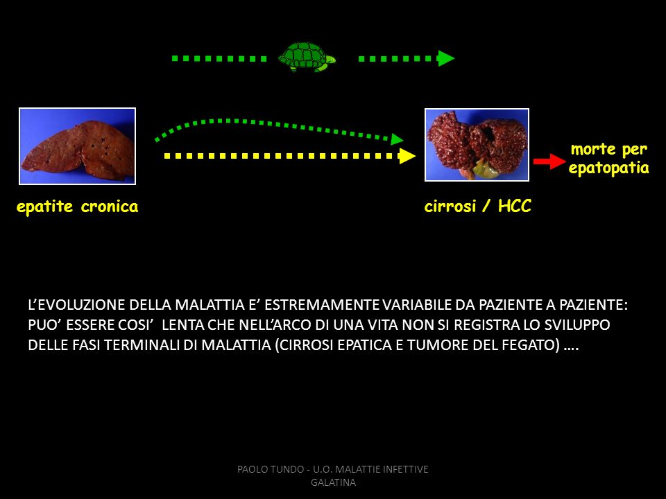 PAOLO TUNDO - U.O. MALATTIE INFETTIVE GALATINA