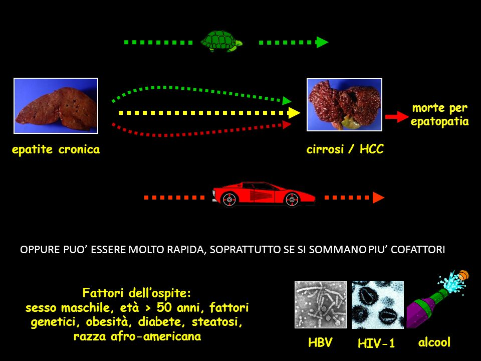 epatite cronica cirrosi / HCC