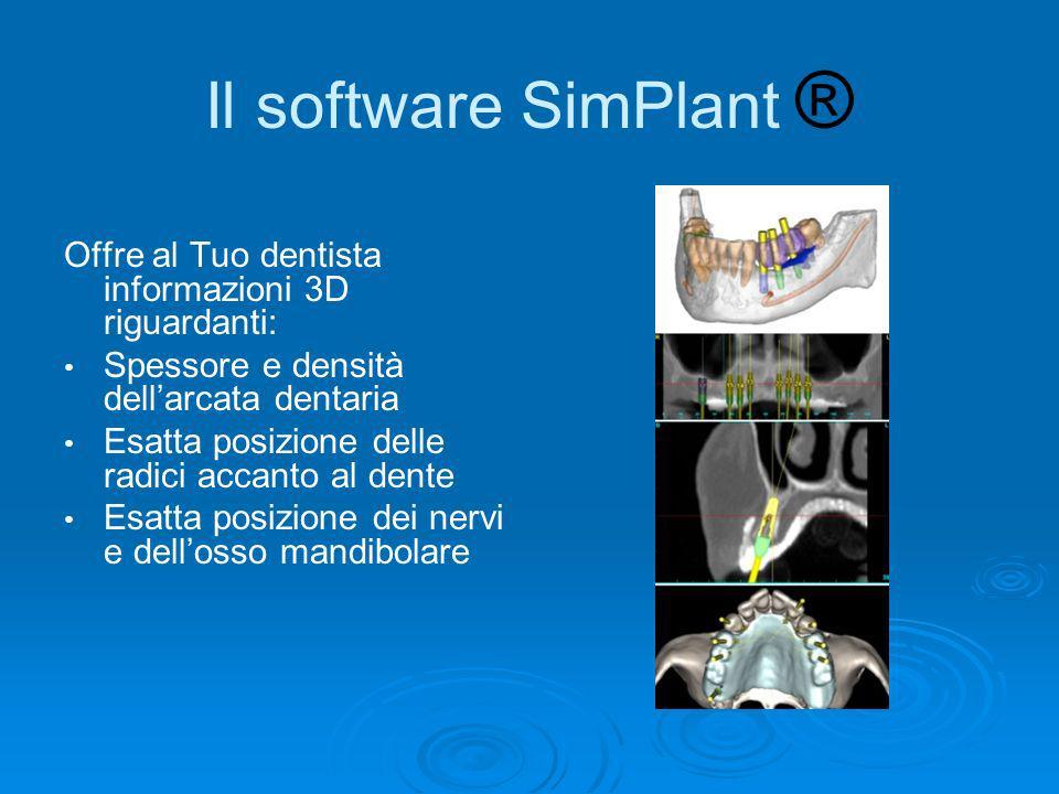 Il software SimPlant ® Offre al Tuo dentista informazioni 3D riguardanti: Spessore e densità dell'arcata dentaria.