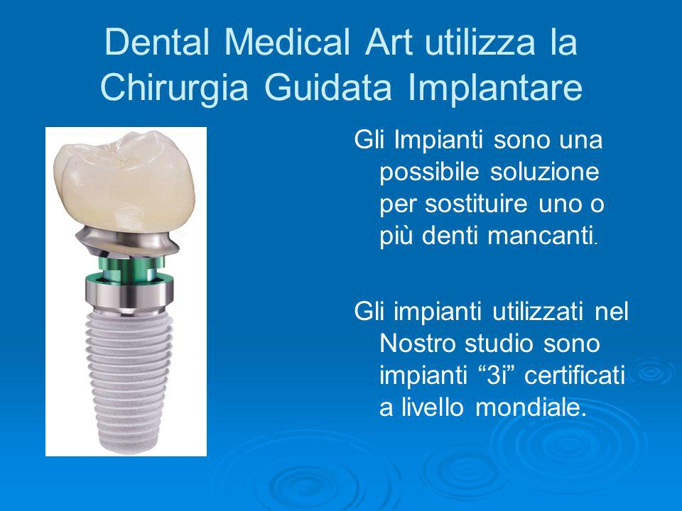 Dental Medical Art utilizza la Chirurgia Guidata Implantare