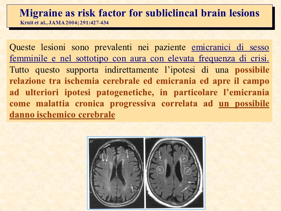 Migraine as risk factor for subliclincal brain lesions