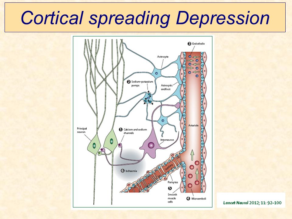 Cortical spreading Depression