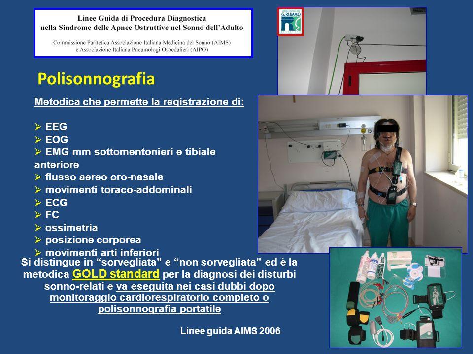 Polisonnografia Metodica che permette la registrazione di: EEG EOG