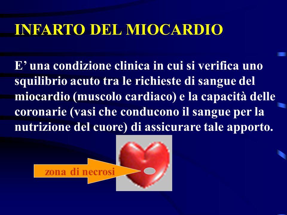 INFARTO DEL MIOCARDIO E' una condizione clinica in cui si verifica uno