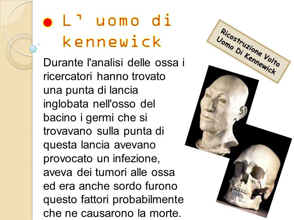 Ricostruzione Volto Uomo Di Kennewick