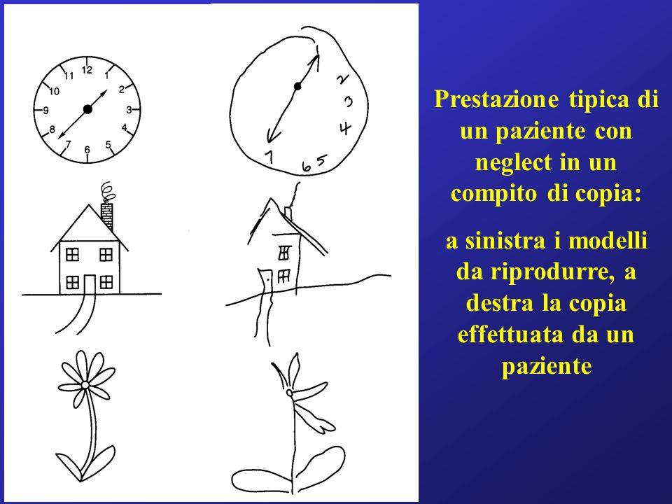 Prestazione tipica di un paziente con neglect in un compito di copia: