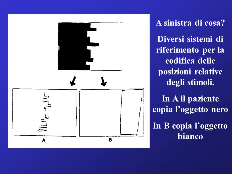 In A il paziente copia l'oggetto nero In B copia l'oggetto bianco