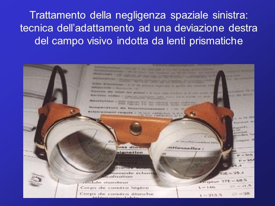 Trattamento della negligenza spaziale sinistra: tecnica dell'adattamento ad una deviazione destra del campo visivo indotta da lenti prismatiche