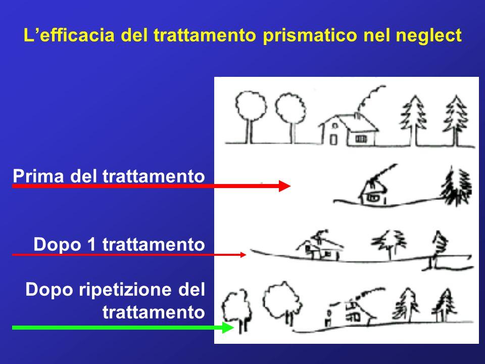 L'efficacia del trattamento prismatico nel neglect