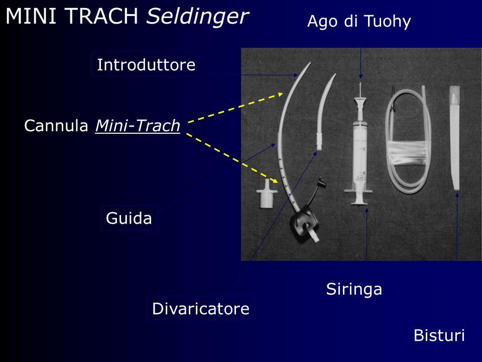 MINI TRACH Seldinger Ago di Tuohy Introduttore Cannula Mini-Trach