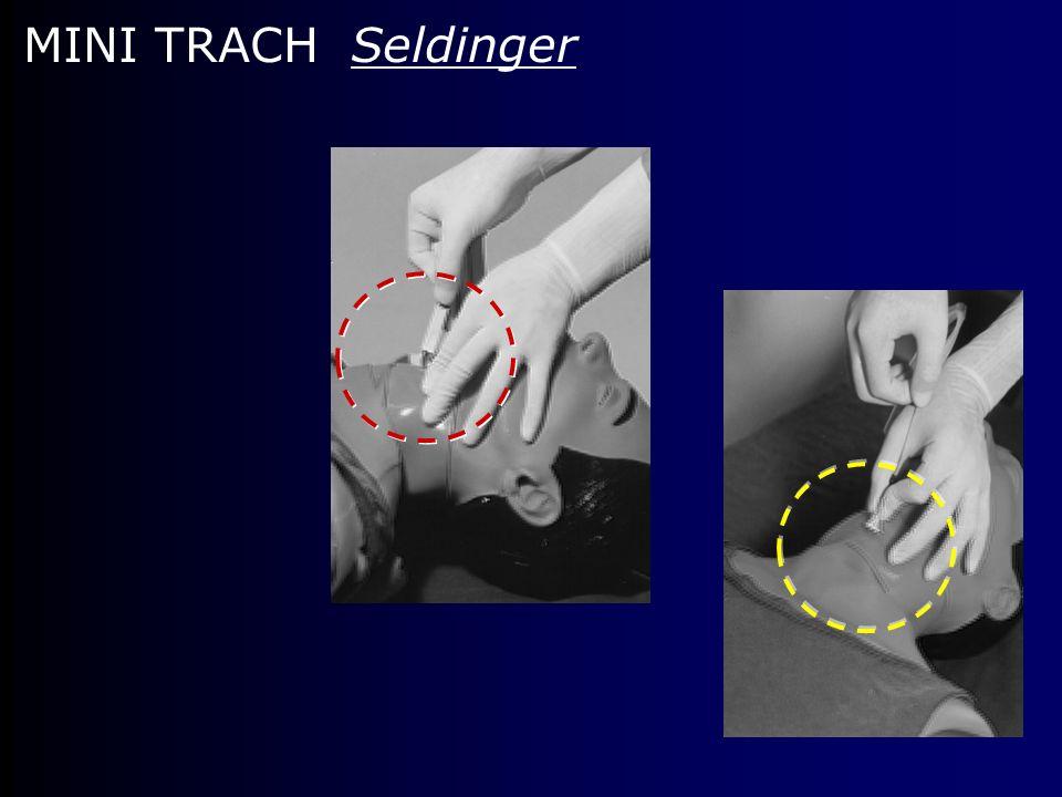 MINI TRACH Seldinger