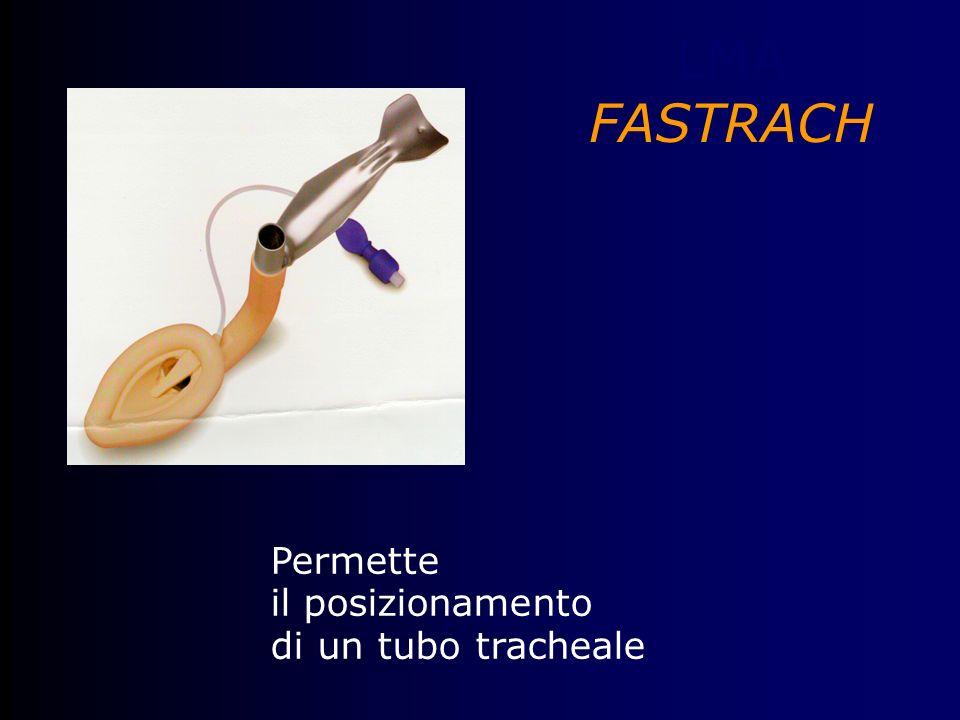LMA FASTRACH Permette il posizionamento di un tubo tracheale