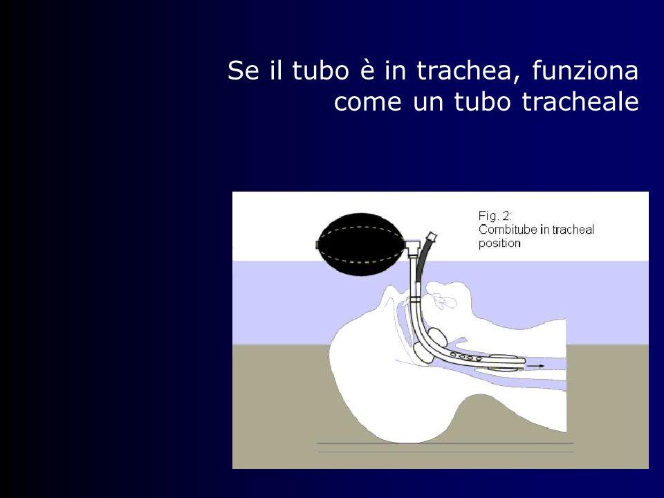 Se il tubo è in trachea, funziona