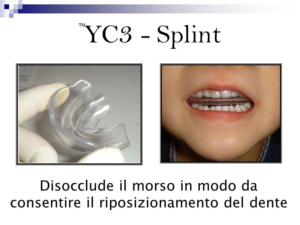 YC3 - Splint ™ Disocclude il morso in modo da consentire il riposizionamento del dente