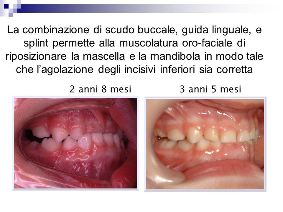 La combinazione di scudo buccale, guida linguale, e splint permette alla muscolatura oro-faciale di riposizionare la mascella e la mandibola in modo tale che l'agolazione degli incisivi inferiori sia corretta