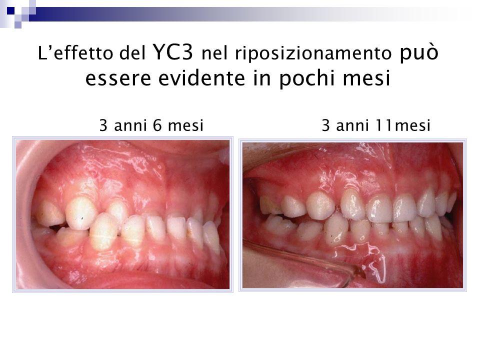 L'effetto del YC3 nel riposizionamento può essere evidente in pochi mesi 3 anni 6 mesi 3 anni 11mesi