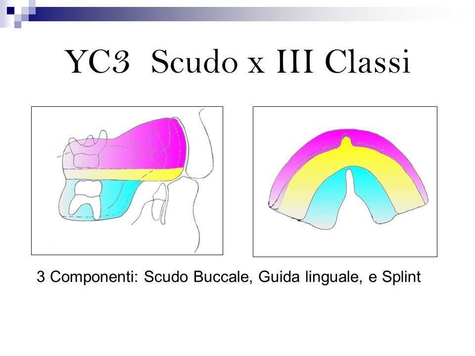 3 Componenti: Scudo Buccale, Guida linguale, e Splint