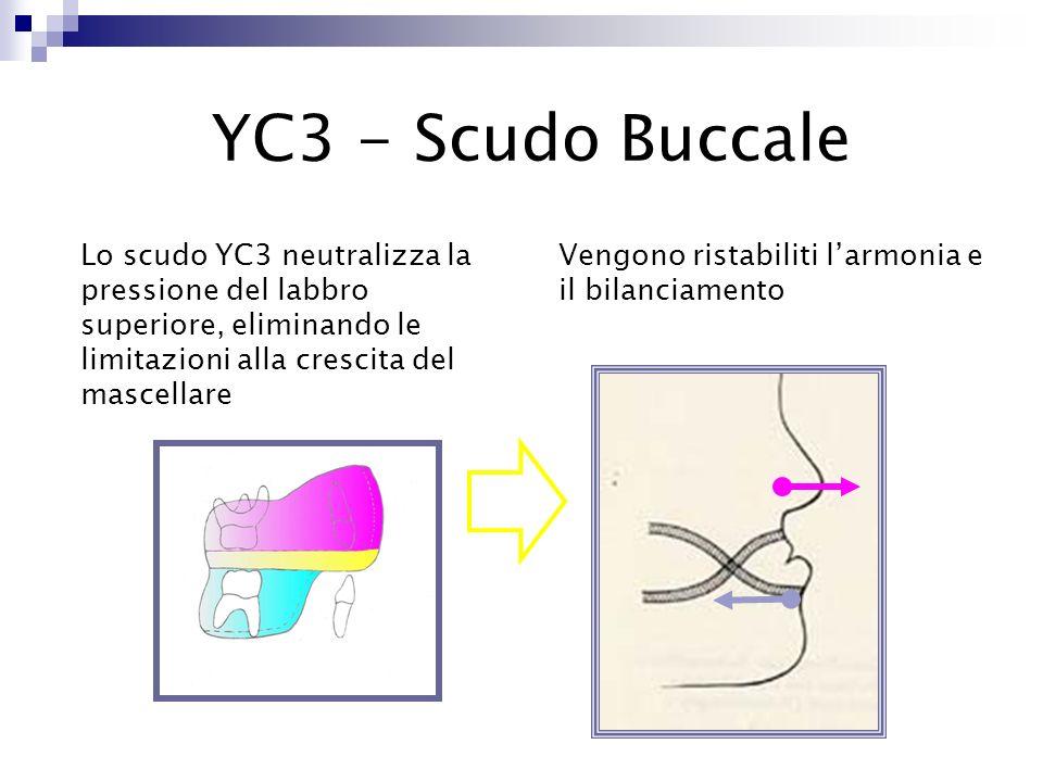 YC3 - Scudo Buccale Lo scudo YC3 neutralizza la pressione del labbro superiore, eliminando le limitazioni alla crescita del mascellare.