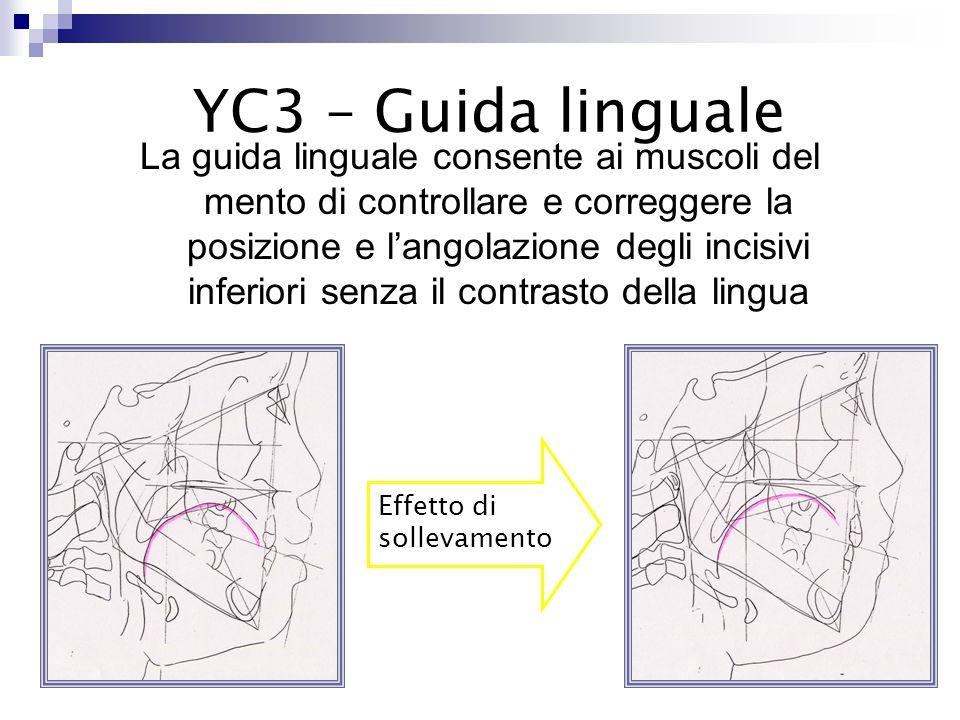 YC3 – Guida linguale