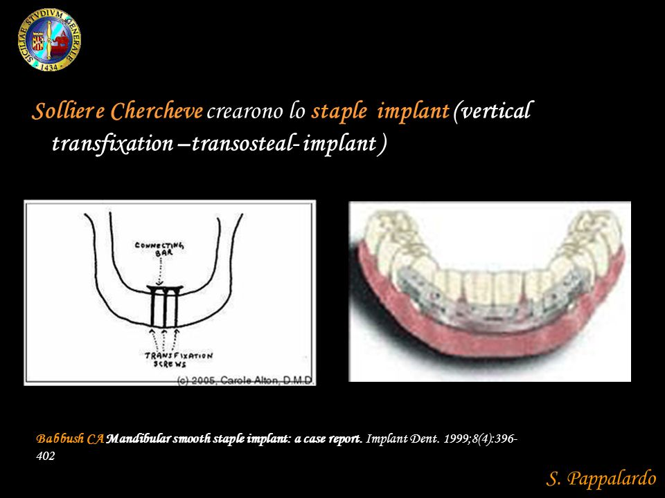 Sollier e Chercheve crearono lo staple implant (vertical transfixation –transosteal- implant )