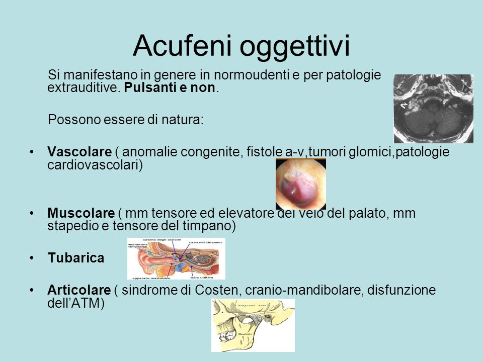 Acufeni oggettivi Si manifestano in genere in normoudenti e per patologie extrauditive. Pulsanti e non.