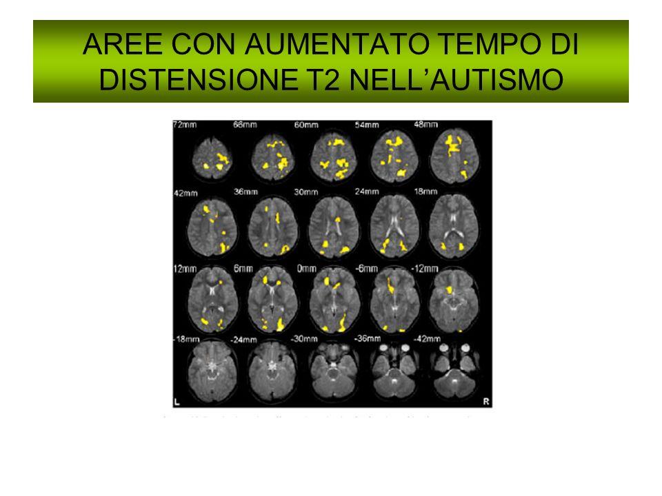 AREE CON AUMENTATO TEMPO DI DISTENSIONE T2 NELL'AUTISMO