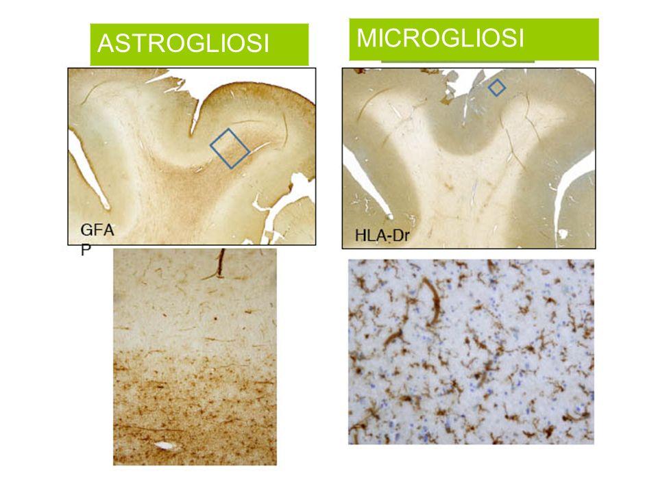 MICROGLIOSI ASTROGLIOSI