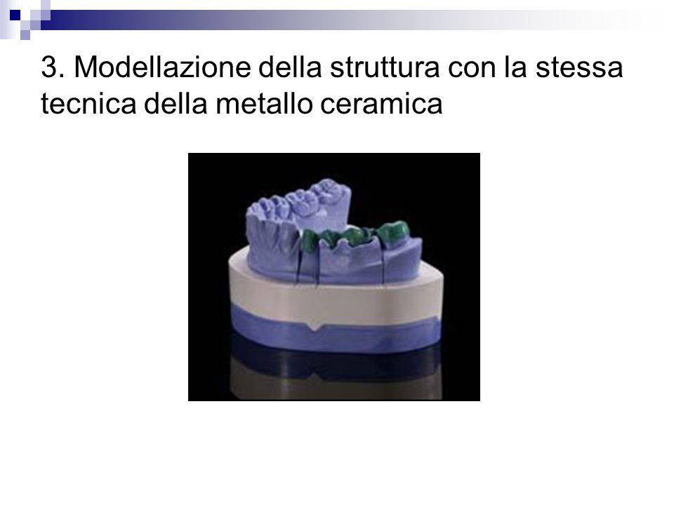 3. Modellazione della struttura con la stessa tecnica della metallo ceramica