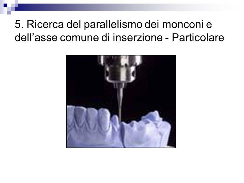 5. Ricerca del parallelismo dei monconi e dell'asse comune di inserzione - Particolare