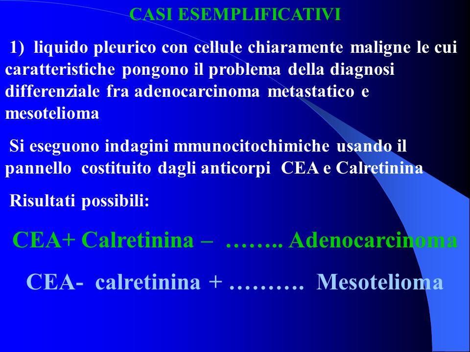 CEA+ Calretinina – …….. Adenocarcinoma