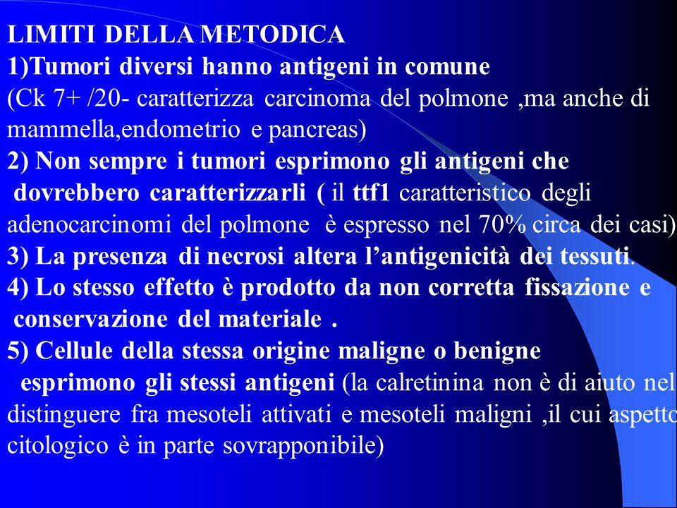 LIMITI DELLA METODICA 1)Tumori diversi hanno antigeni in comune.