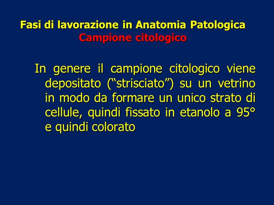Fasi di lavorazione in Anatomia Patologica Campione citologico