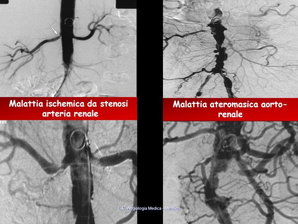 Malattia ischemica da stenosi Malattia ateromasica aorto-renale