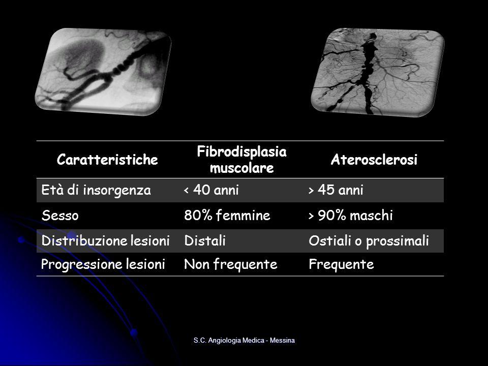 Fibrodisplasia muscolare