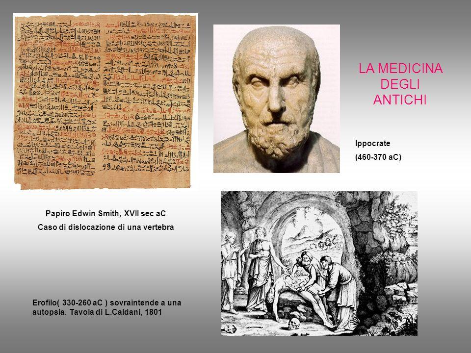 Papiro Edwin Smith, XVII sec aC Caso di dislocazione di una vertebra
