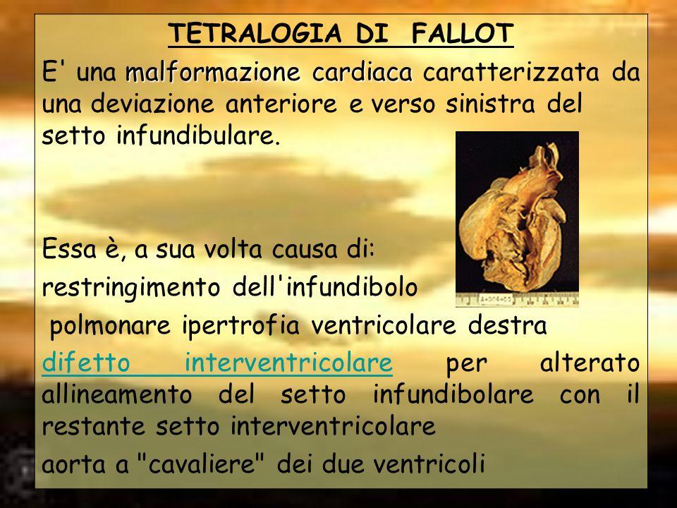 TETRALOGIA DI FALLOT E una malformazione cardiaca caratterizzata da una deviazione anteriore e verso sinistra del setto infundibulare.