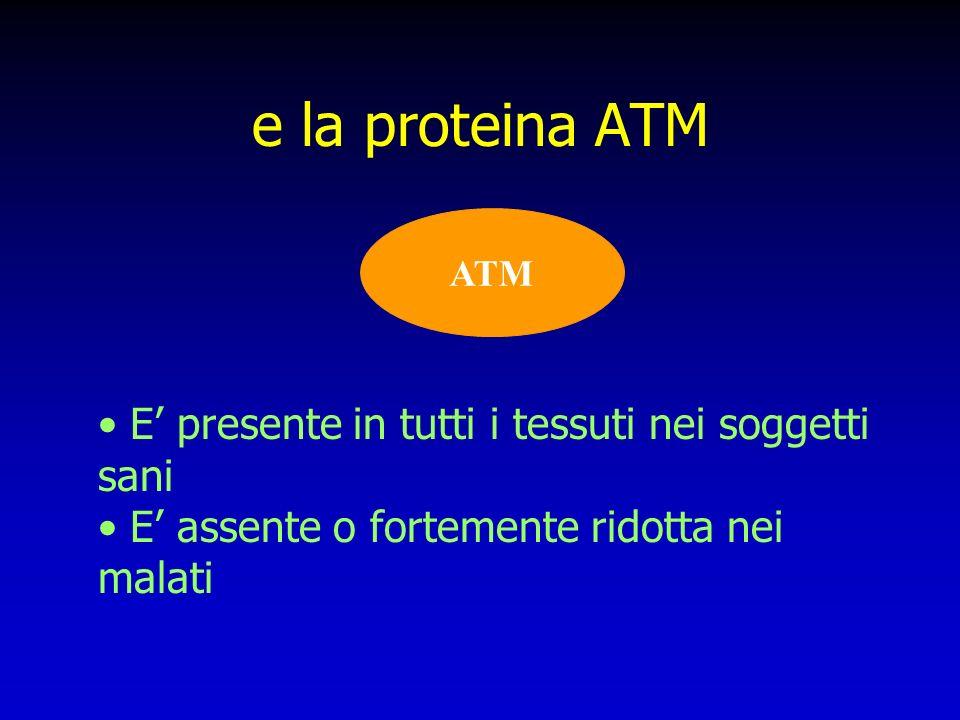 e la proteina ATM E' presente in tutti i tessuti nei soggetti sani