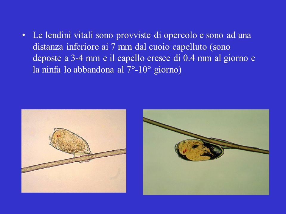 Le lendini vitali sono provviste di opercolo e sono ad una distanza inferiore ai 7 mm dal cuoio capelluto (sono deposte a 3-4 mm e il capello cresce di 0.4 mm al giorno e la ninfa lo abbandona al 7°-10° giorno)