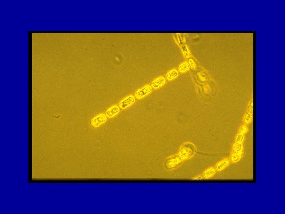 Colonia di diatomee Skeletonema costatum