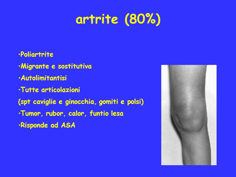 artrite (80%) Poliartrite Migrante e sostitutiva Autolimitantisi