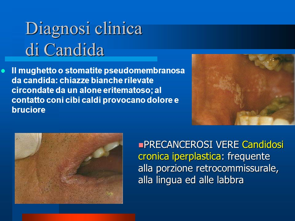 Diagnosi clinica di Candida