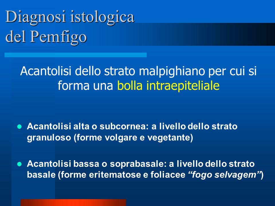 Diagnosi istologica del Pemfigo